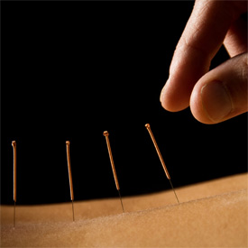 Acupuncture / TCM