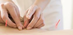 fertility-acupuncture-treatment