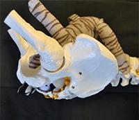 baby 1 in pelvis
