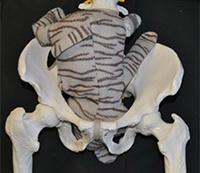baby 2 in pelvis