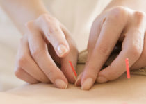 acupuncture for pain and injuries