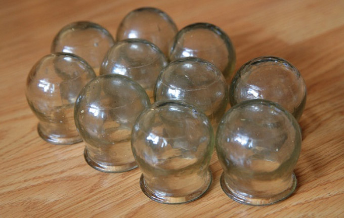 cupping - Traditional Chinese Medicine