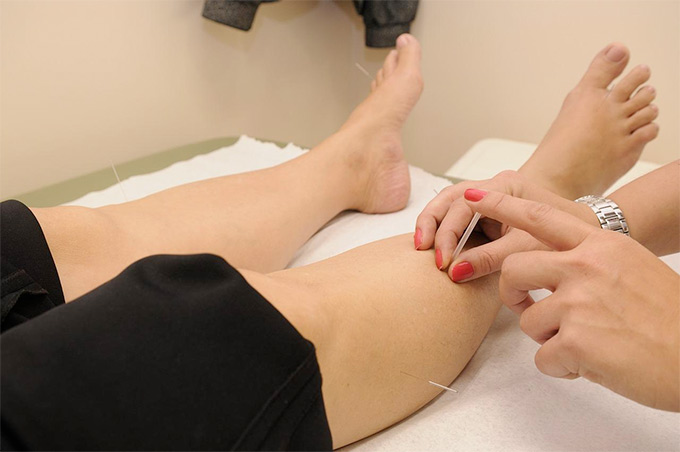 acupuncture enhances the immune system