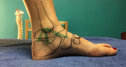 ankle with ligaments drawn on
