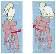 low ankle sprain