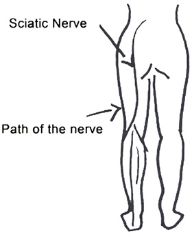sciatic-nerve-diagram